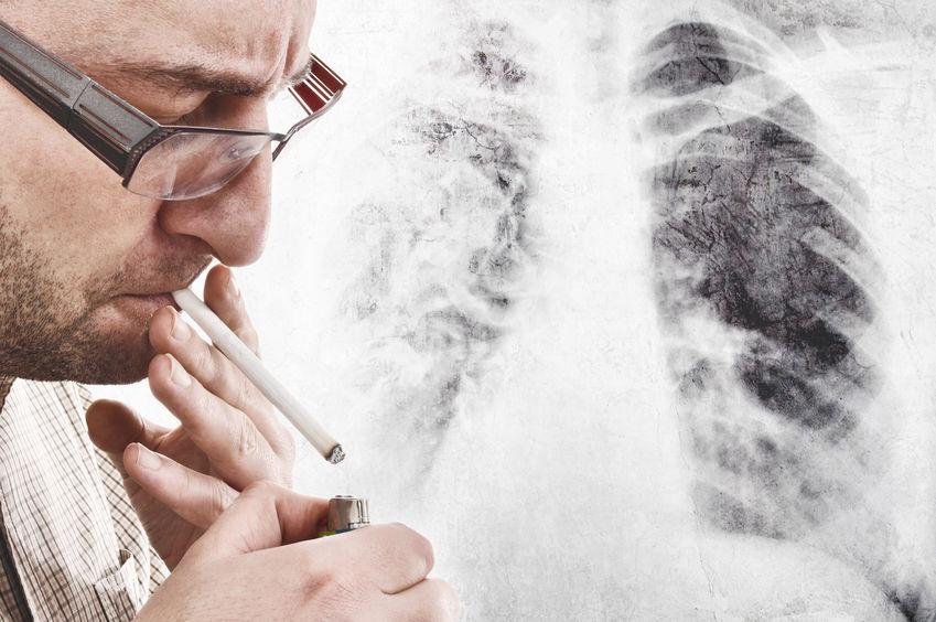 全国肿瘤防治宣传周 什么是肺癌靶向治疗?